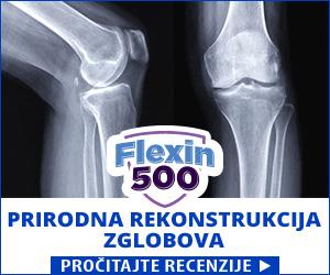 Flexin500 - zglobovi